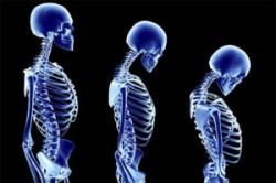 پوکی استخوان و خطر کاهش قد
