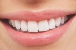 راههای طبیعی جلوگیری از کرم خوردگی دندان