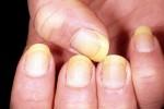 زرد شدن ناخن yellow nails