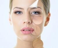 چه چیزی باعث پیری زودرس پوست میشود؟