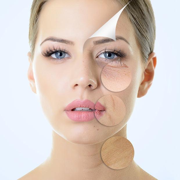 چی باعث پیری پوست میشودSkin aging