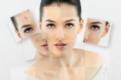 راههای درمان آکنه صورت