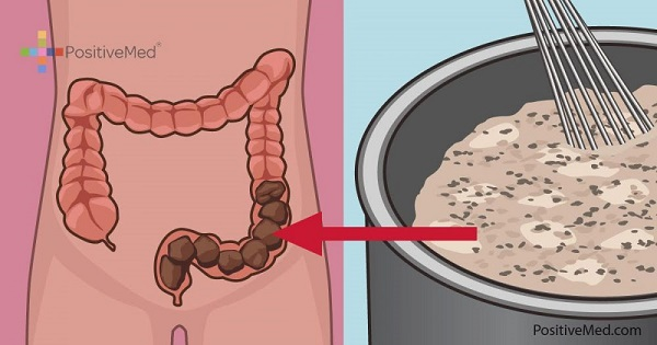 homemade-mixture-that-will-clean-your-colon-of-toxic-waste