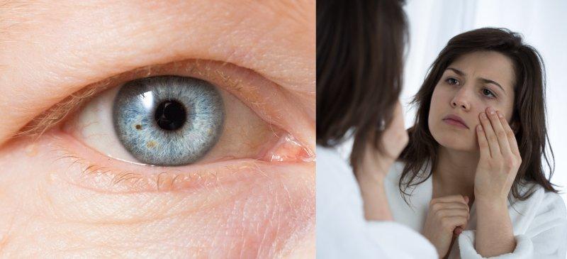 بهترین درمان های افتادگی چشم