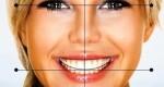 آیا هزینه اصلاح طرح لبخند به صرفه است؟