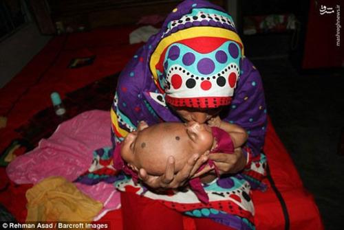 دوقلوهای به هم چسبده بنگلادشی