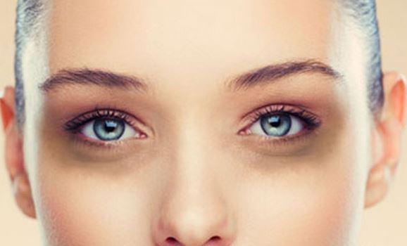puffy-eyes-dark-circles