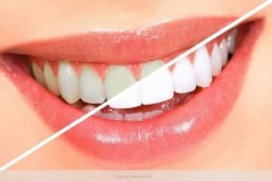 روغن نارگیل برای سفیدی دندان