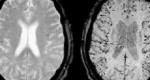 چگونه مغز و بدن را سم زدایی کنیم؟