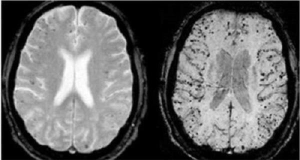مغز و بدن