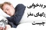 عوارض بد خوابی بر رگ های مغز