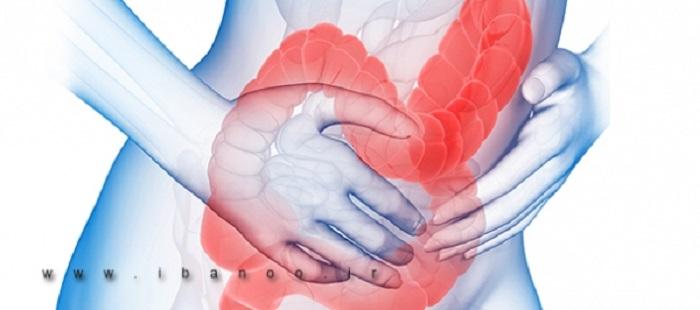 سندروم روده تحریک پذیر (IBS) چیست
