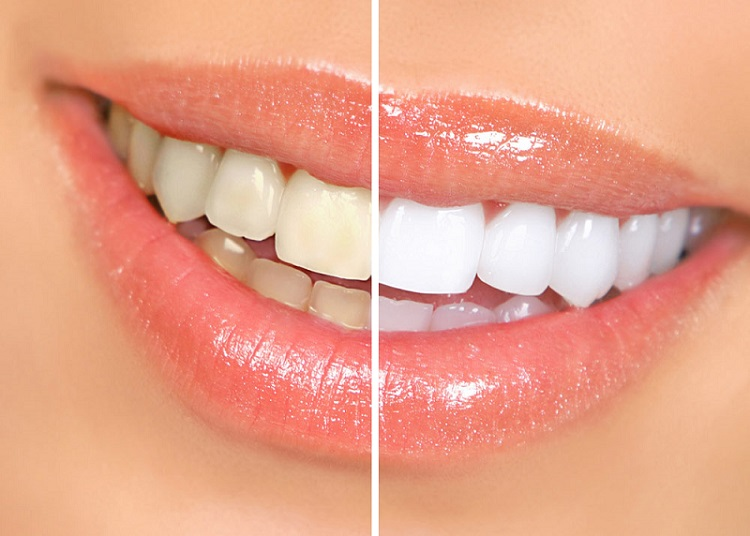 Nine tips for a perfect Hollywood smile
