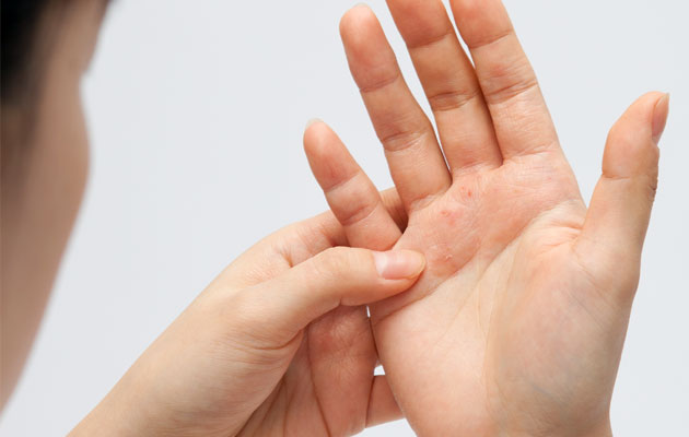 treatment-for-psoriasis
