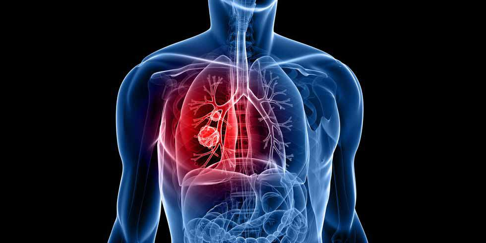 lung-cancer-symptoms