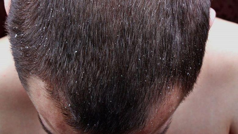 درمان قطعی شوره سر چیست
