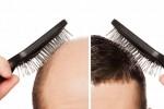 کاشت مو hair-transplant
