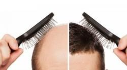 همه چیز درباره کاشت مو