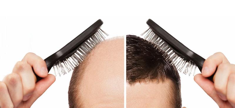 کاشت مو hair-transplantهمه چیز درباره کاشت مو