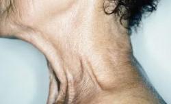 کاهش چین و چروک گردن با کرم صورت