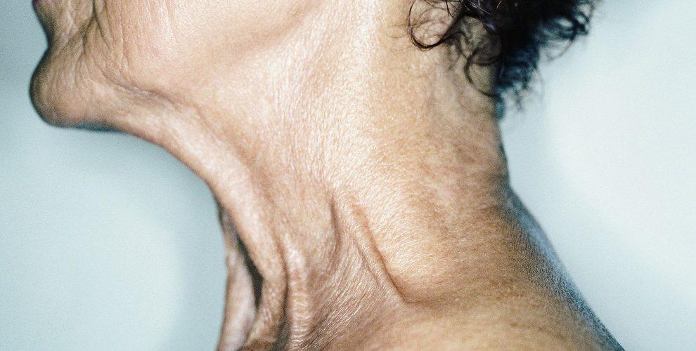 افتادگی پوست گردن