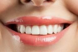 عوامل و علت ایجاد لکه روی دندان