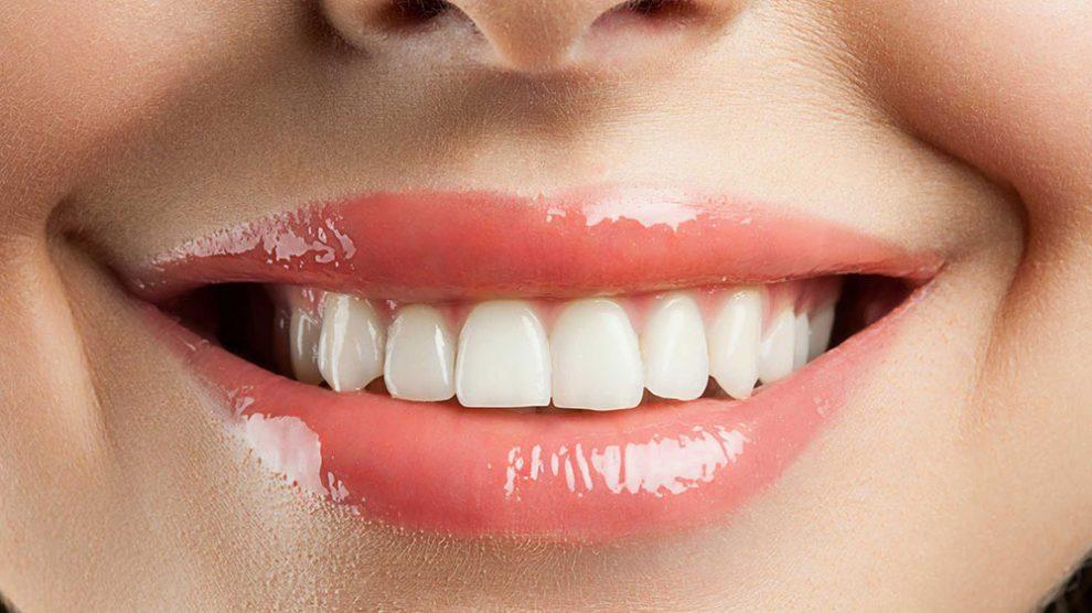 stain_free_smile