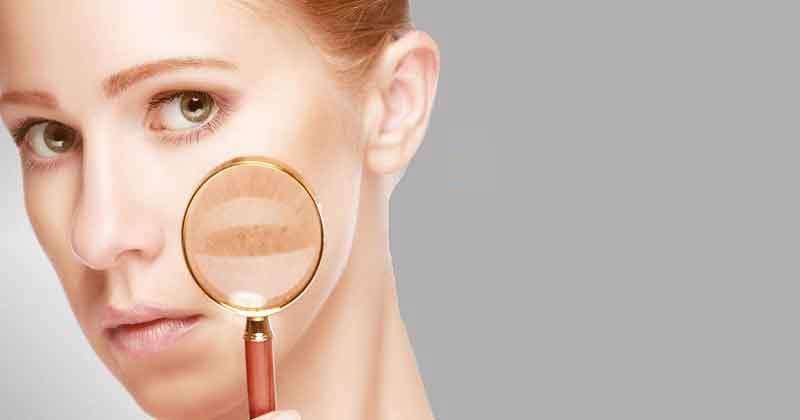 علائم لوپوس پوستی چیست