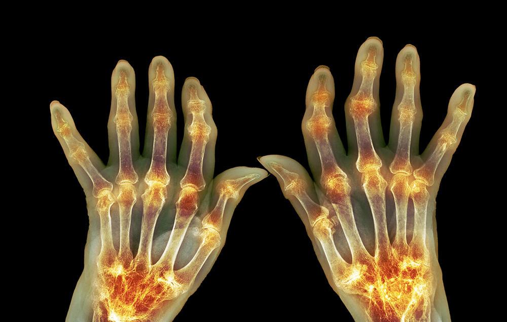 arthritis-symptoms-science_photo