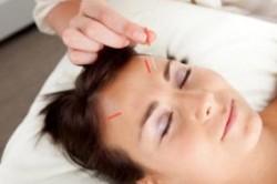 طب سوزنی و درمان ناباروری