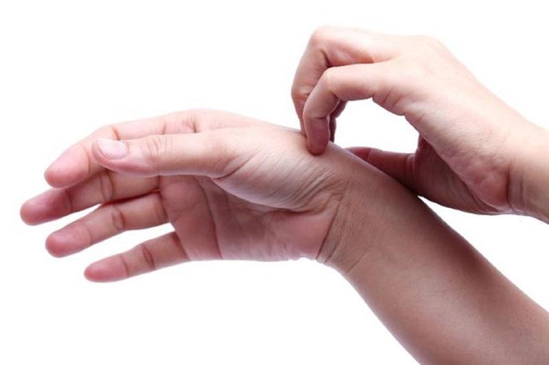 خارش و کلستاز بارداریItching hands
