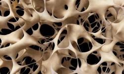 مقاله کامل درمورد بیماری پوکی استخوان