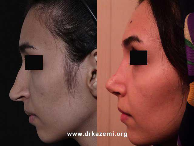 عکس عمل جراحی بینی