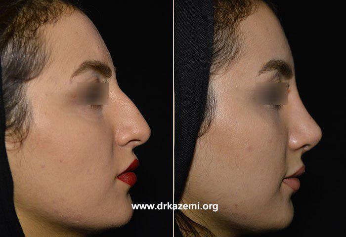 تصاویر جراحی بینی