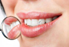 get_white_teeth