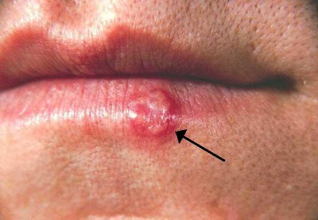 تبخال Herpes-simplex