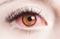 علت قرمزی چشم و درمان آن