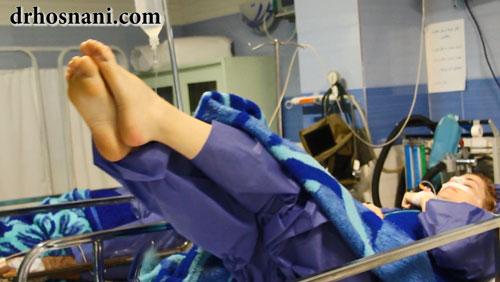 excersize after rhinoplasty