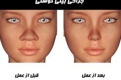 جراحی بینی گوشتی و مواردی که برای عمل بینی باید رعایت کرد