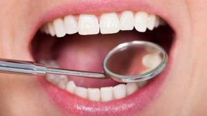 راههای خانگی جرم گیری دندان