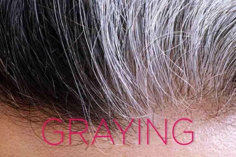 چرا موها سفید می شوند؟ چه باید کرد؟