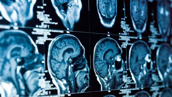 جراح مغز