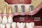 درمان ایمپلنت دندان