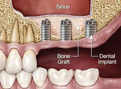 درمان ایمپلنت  دندون