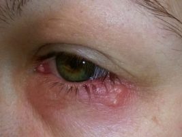 تبخال چشمی