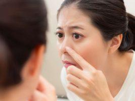 چگونه جوش های سرسفید بر روی بینی را درمان کنیم؟