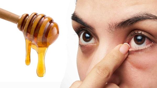 ۱۰ روش برای تسکین درد چشم