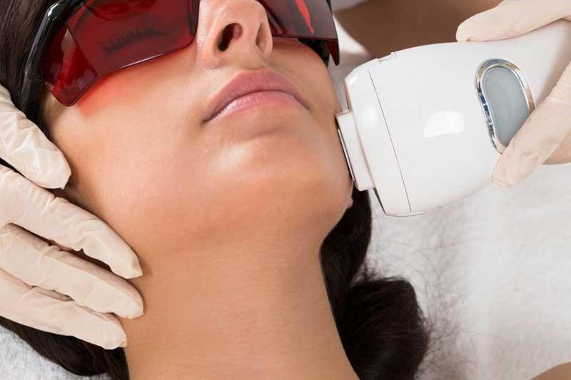 درباره لیزر مو های زائد بیشتر بدانیم