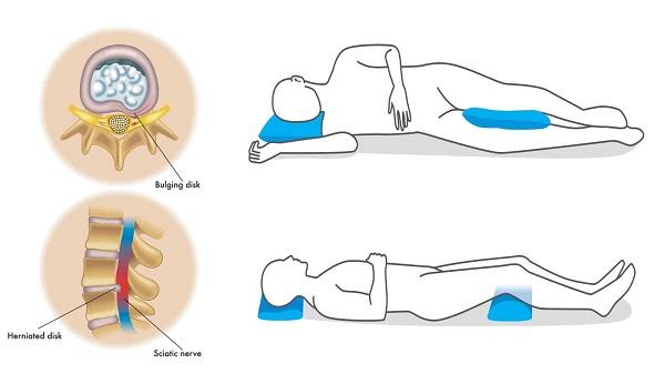 بهترین حالت خواب برای کاهش کمر درد