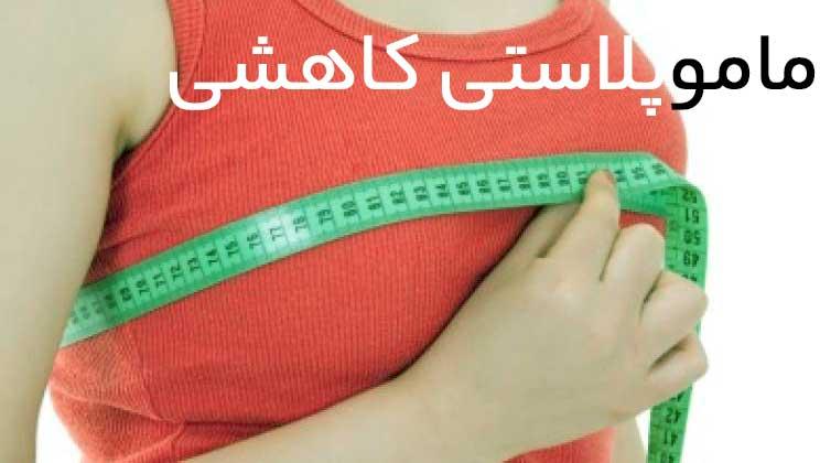 mammoplasty-topclinic